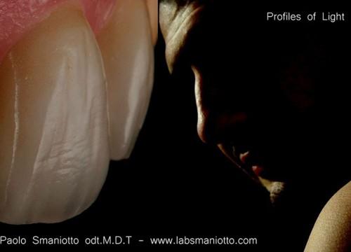 Profili-di-luce-smaniotto