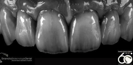 Réhabilitation-maxillaire-Sinuosité-des-lignes-de-transition